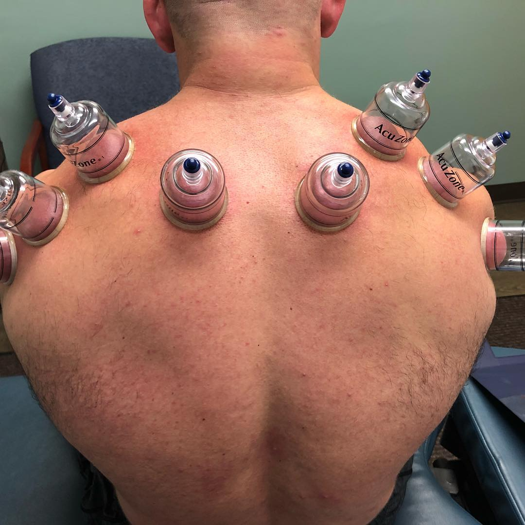 Cupping Therapy Clarkston Michigan 48346